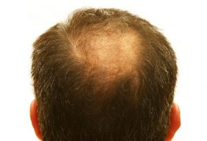 Come fare per favorire la ricrescita dei capelli alopecia