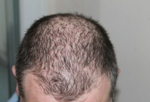 Krestina PRO Funziona perdita di capelli