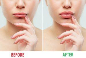 Crema volumizzante per labbra prima e dopo