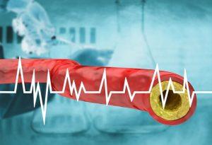Contralip NO colesterolo contro i trigliceridi
