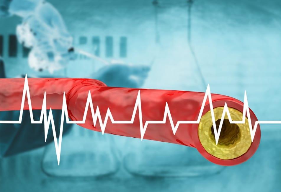 Contralip NO colesterolo Funziona? Recensione e Opinioni