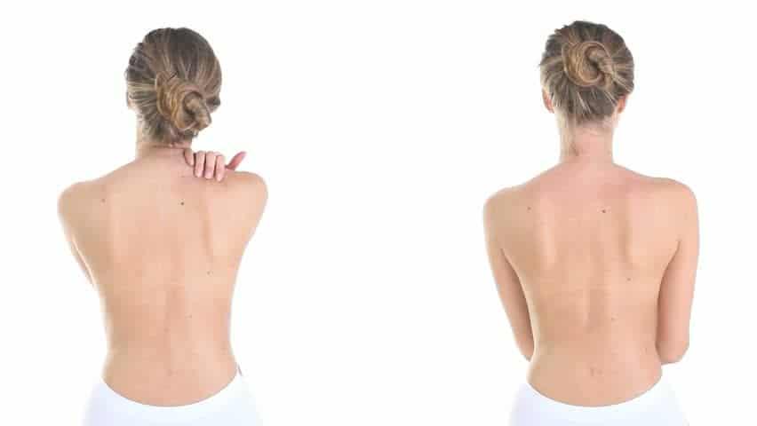 Pelle del corpo grassa: ecco alcuni rimedi
