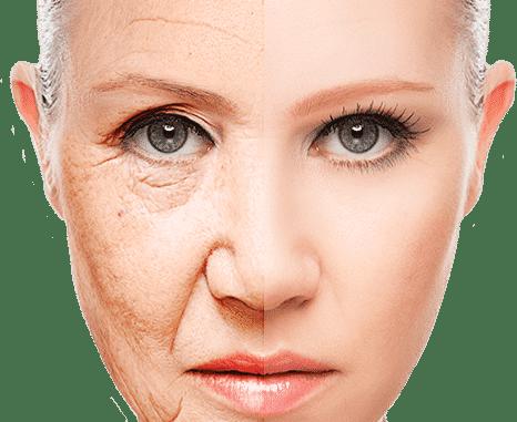 L'acido ialuronico: gli effetti sulla pelle