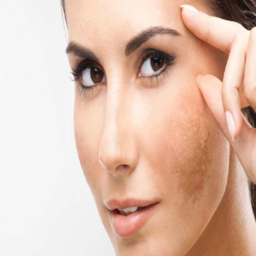 Macchie sulla pelle: Migliori prodotti per eliminarle