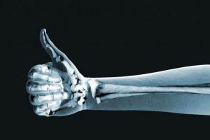 lista integratori per osteoporosi