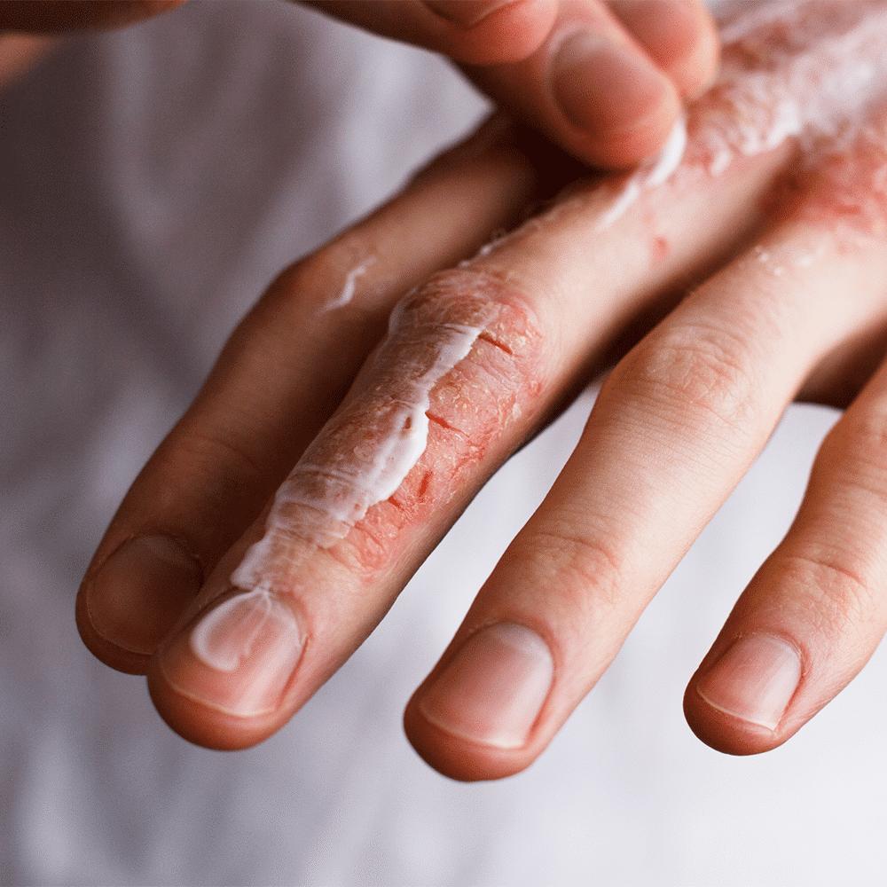 Geloni mani e piedi: Cause e rimedi naturali [Testati]