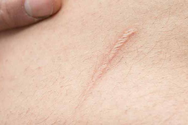 Crema per cicatrici