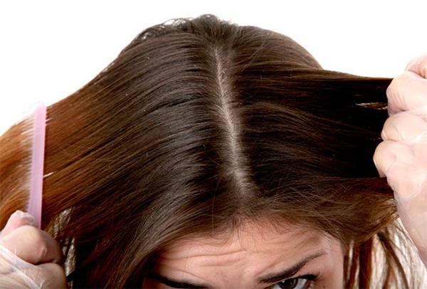 Shampoo Dermatite Seborroica: Migliori 7 consigliati dai dermatologi