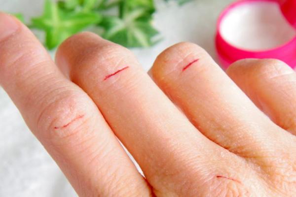 Ragadi mani e piedi: Migliori 5 creme da usare [Test 2020]