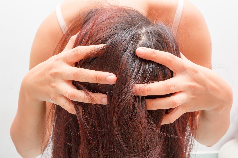 Cuoio capelluto dermatite seborroica