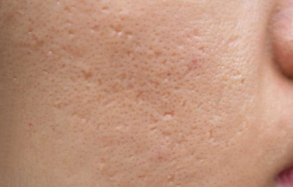Crema cicatrici acne