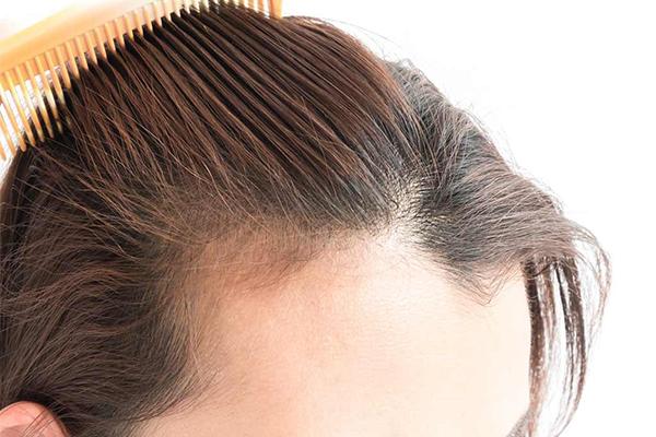 Diradamento capelli: Rimedi e prodotti consigliati dalla scienza [2020]