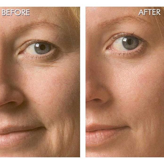 Ossigenoterapia viso prima e dopo