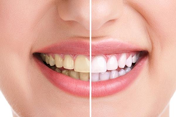 Sbiancamento denti: 🥇Migliori 7 Kit + come si fa [Guida completa]