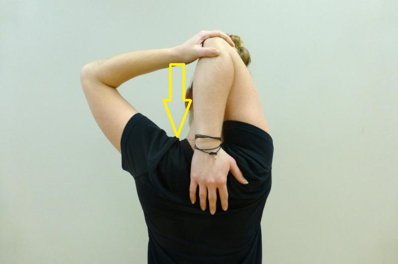 Epicondilite - allungamenti per eliminare il dolore